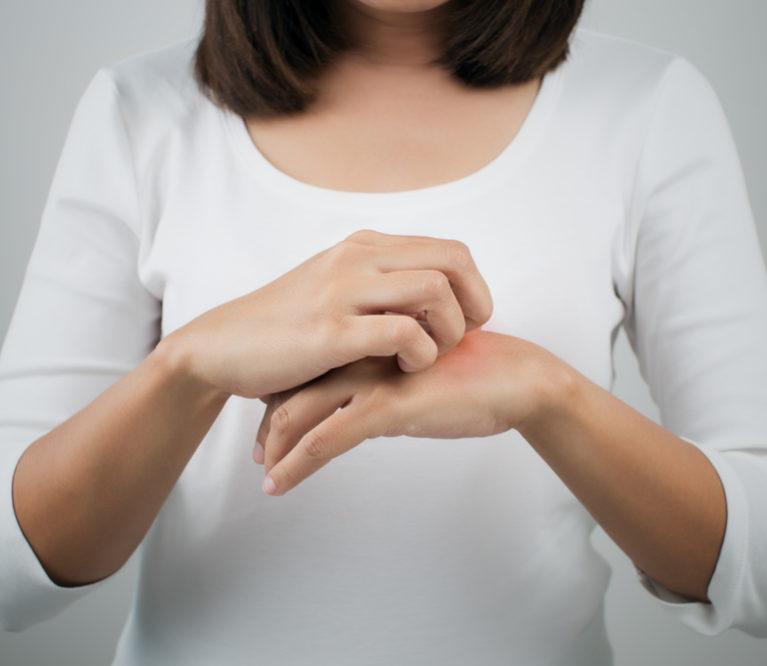 Atopinis dermatitas