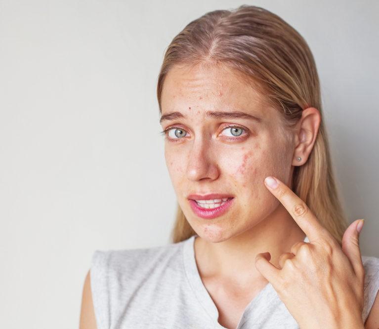 6 odos ligos, kurias dažniausiai painiojame su akne